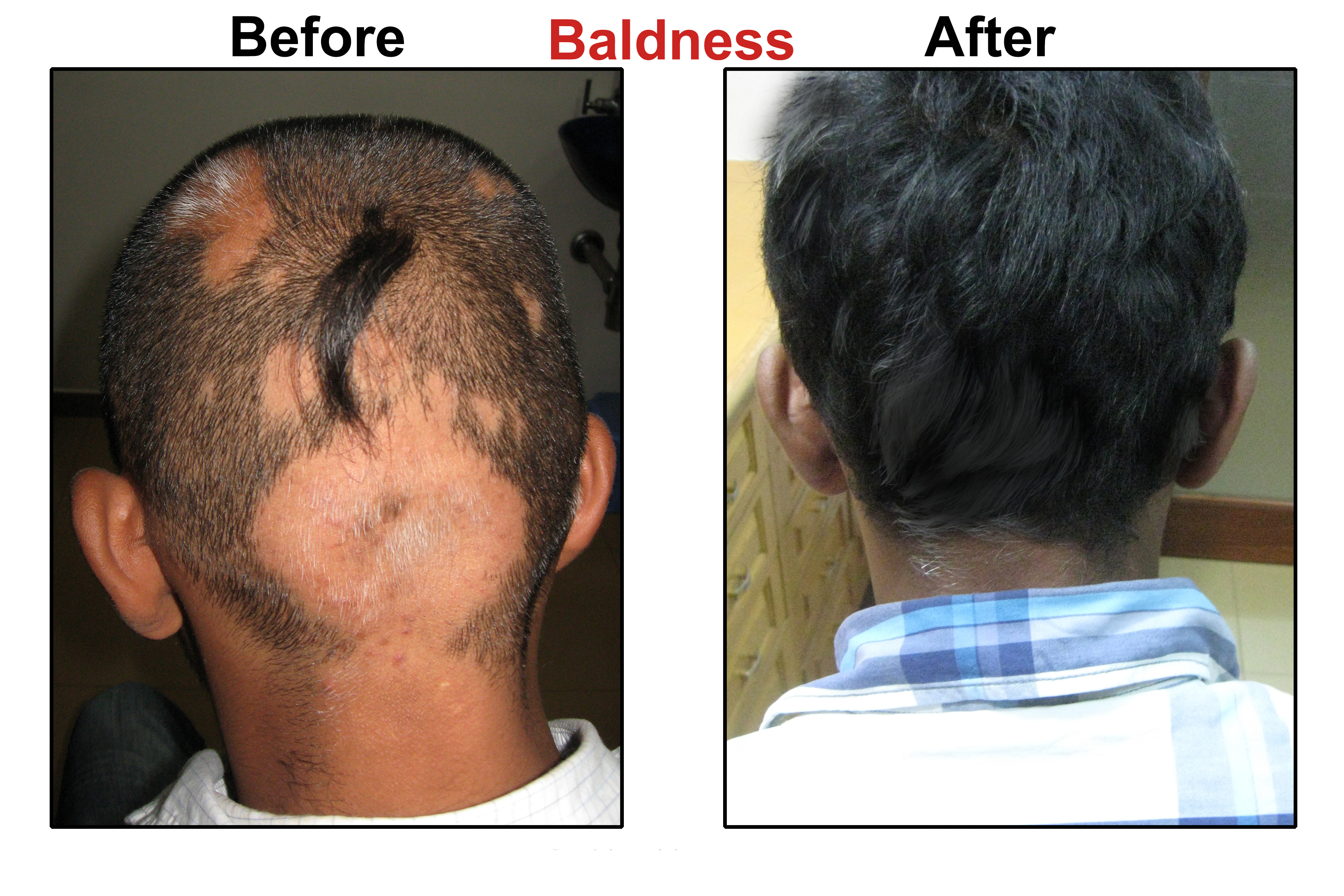a discussion of baldness and methods to cover the bald area Fue hair transplant follicular unit extraction (fue) is the modern method of hair transplant in which the grafts are collected from the donor area individually (one by one.